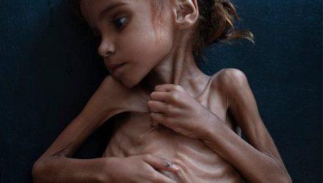 Amal Hussain Yemen
