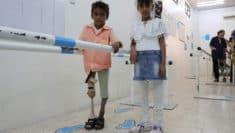 Yemen guerra contro i bambini Unicef